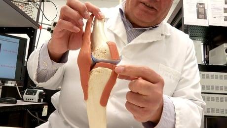 Dr. Ziad Abusara meniscus knee surgery