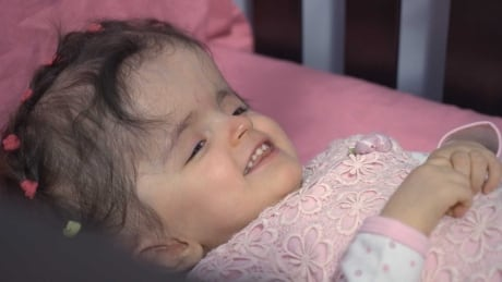 quebec girl with hydrocephalus