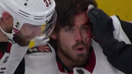 Conor Garland left bloody after scoring painful goal