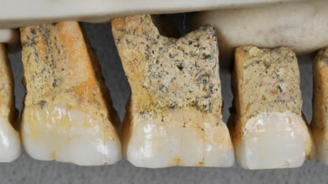 Bones found in Philippines may belong to previously unknown human relative