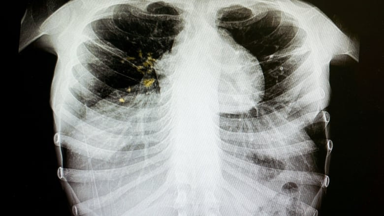 Case of tuberculosis confirmed in Prince George