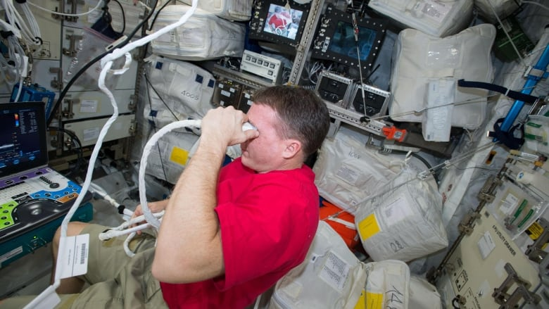 f1f31f801bfb NASA astronaut Terry Virts performs an ocular ultrasound self-scan to  obtain images of the optic nerve and globe of the eye. Astronauts can  develop an eye ...