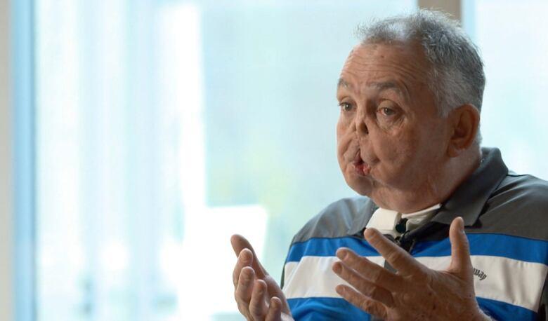 Canada's 1st face transplant recipient has had many setbacks