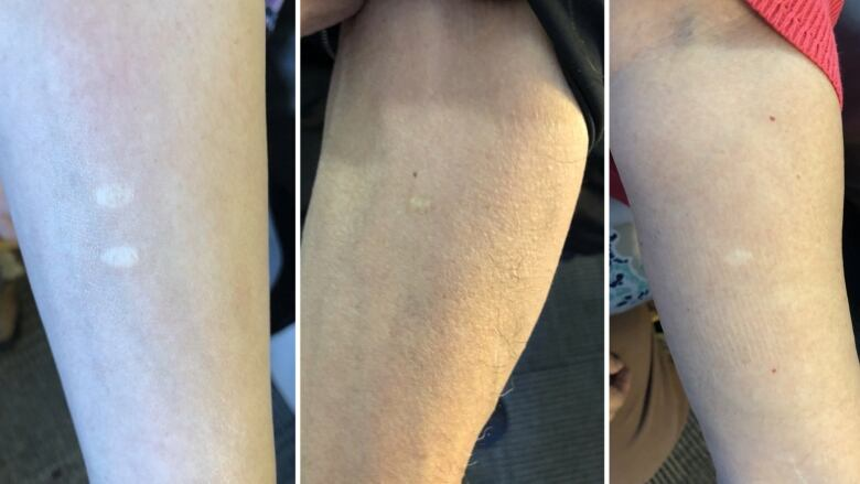 'We are not monkeys': Inuit speak out about skin grafts done without consent in 1970s