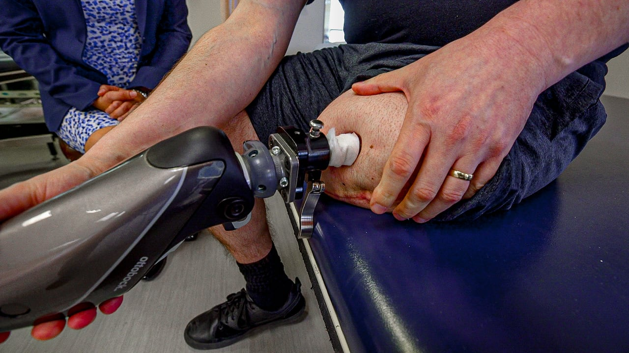 Walking Without Pain How A New Surgical Procedure Is Giving Hope To Some Amputees Cbc News