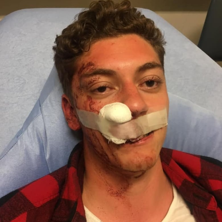 Calgary Police Investigate Alleged Assault At Cowboys