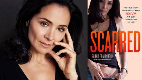 Scarred by Sarah Edmondson