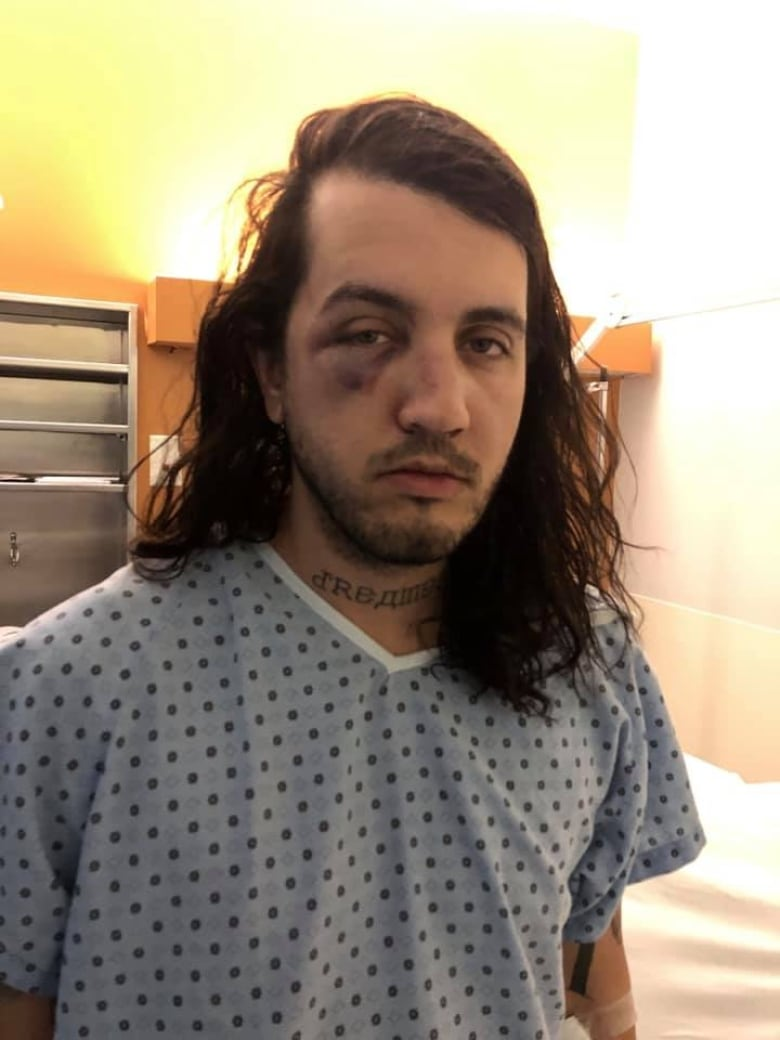 Designer Fiance Say They Were Severely Beaten For Being Gay Outside Quebec Jazz Bar Cbc News