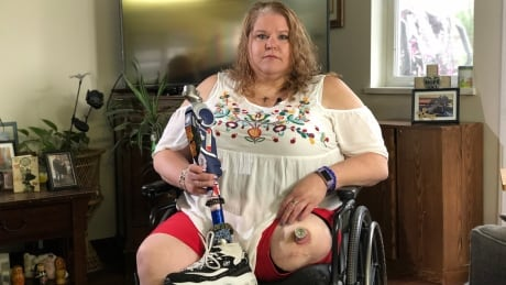 Kia Johnsen sits in her wheelchair, holding the artificial leg PharmaCare wouldn't replace.