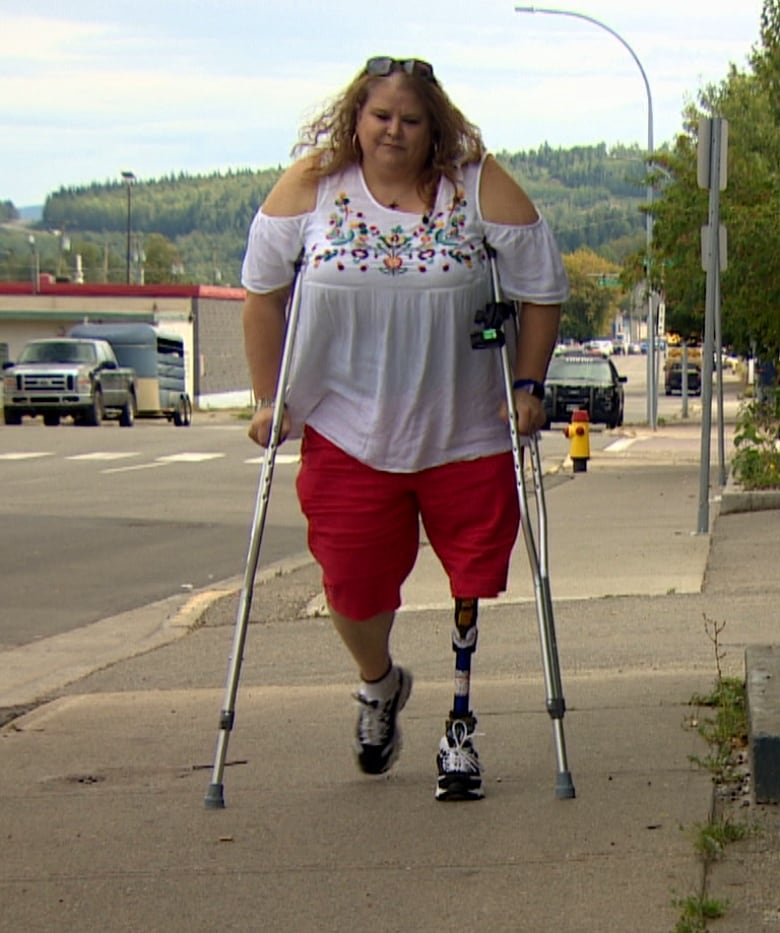 Pharmacare Fight Ends In Win For B C Amputees Denied New Limbs Cbc News