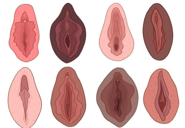 Vagina fotos Vaginal Cancer