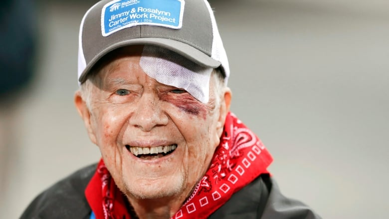 Jimmy Carter in hospital ahead of procedure to relieve pressure on his brain