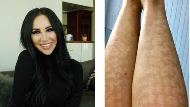 Vancouver Woman Suing After Painful Laser Hair Removal Leaves