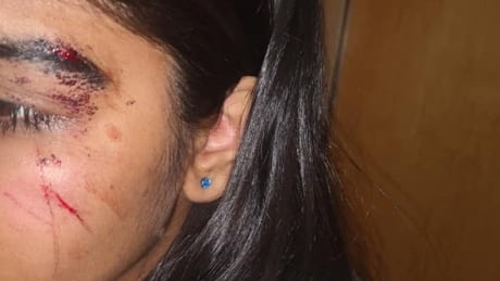 14-year-old assaulted