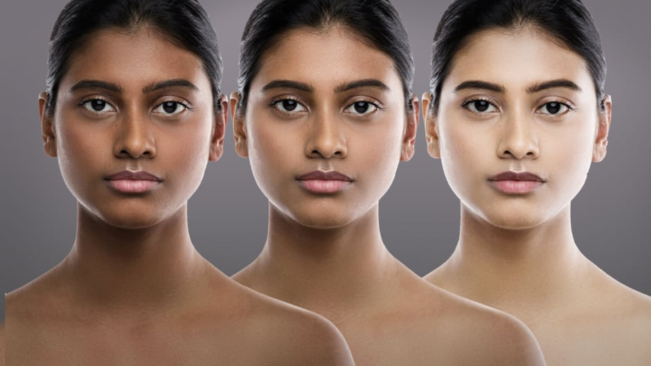 Whiter Skin In 14 Days Tracking The Illegal Sale Of Skin Whitening Creams In Canada Cbc News