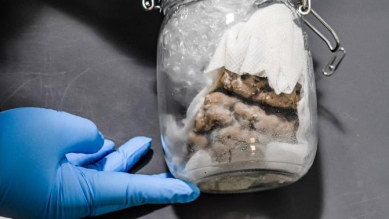 U S Border Officials Seize Human Brain At Blue Water