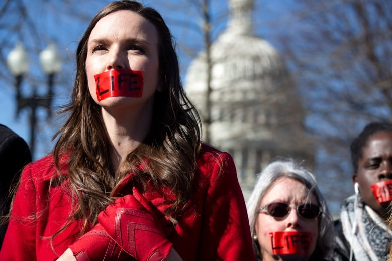 Anti-abortion demonstrators rally outside of the U.S. Supreme Court in Washington on Wednesday