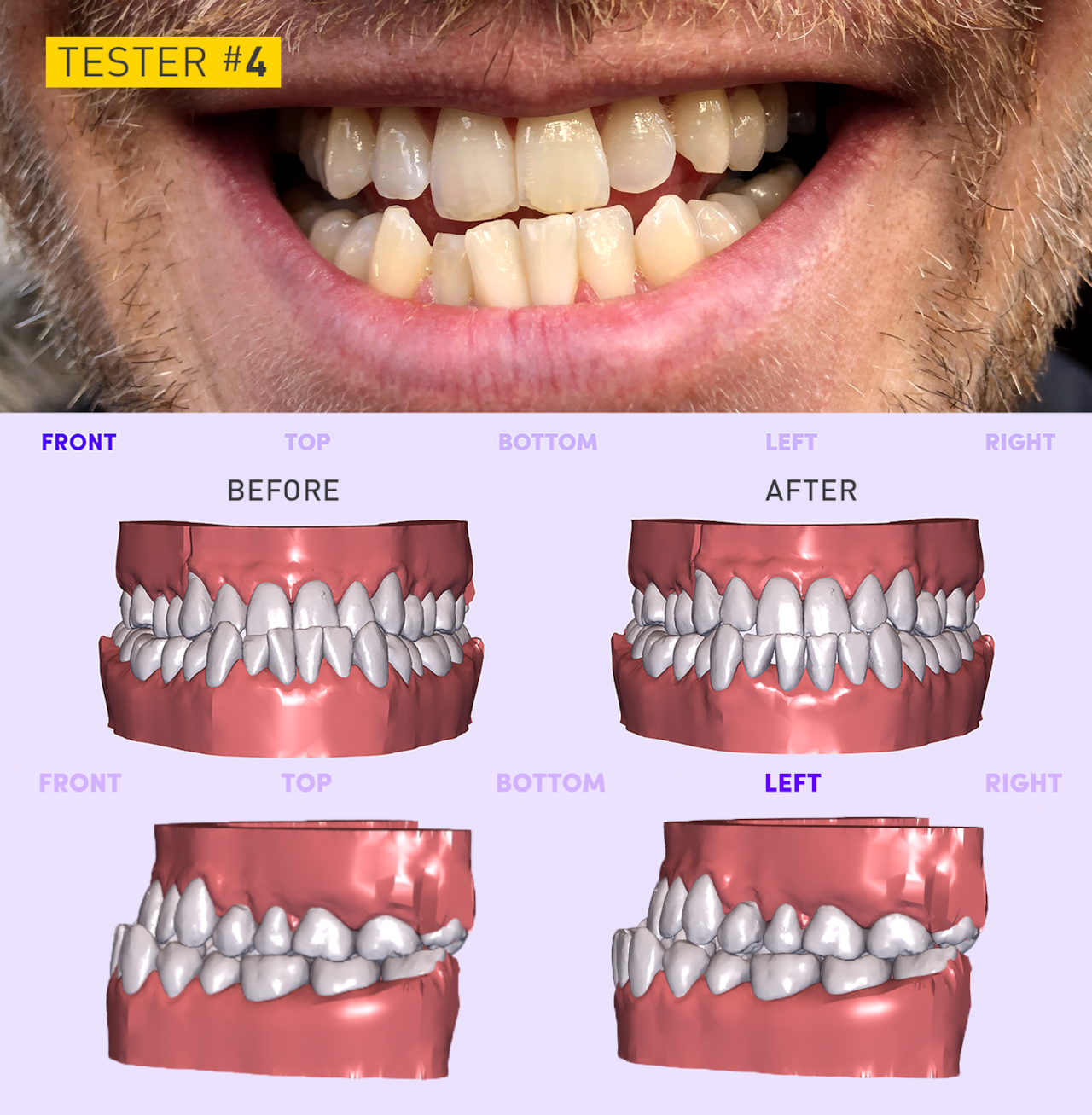 tmj surgery before and after reddit