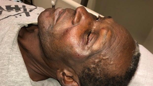 Witness video captures violent takedown of elderly Black couple at GTA hospital | CBC News