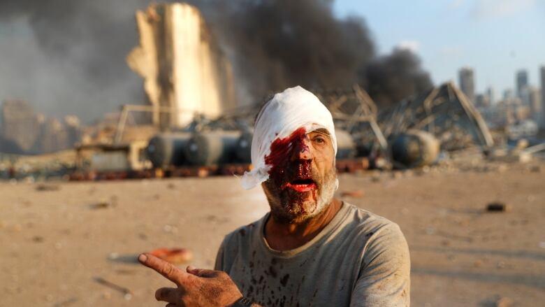 Massive blast rocks Beirut's port area, killing dozens and ...