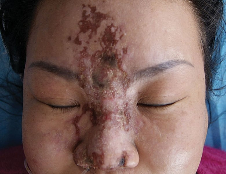 Skin Necrosis, dermalfillerbeforeandafter