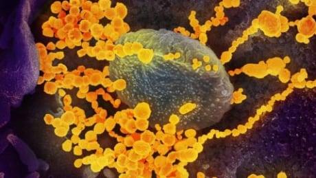 SARS-CoV-2/novel coronavirus/COVID-19