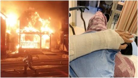 Nolan Hill fire Natasha Bourson broken wrist