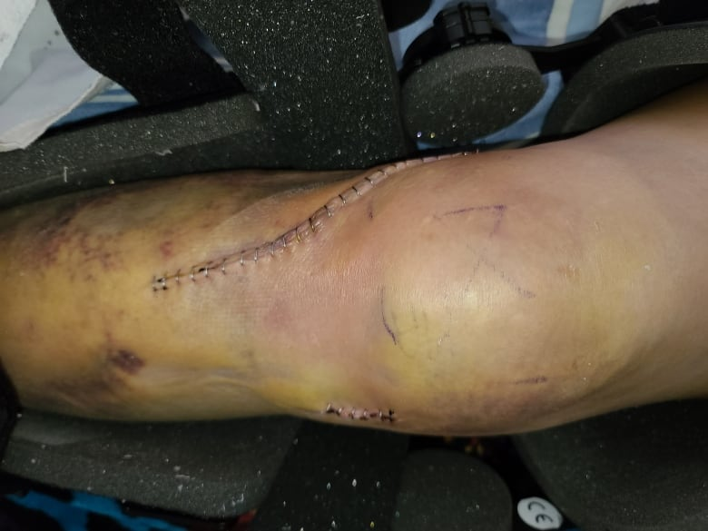 First Nations man forced to drive wife with broken leg nearly 300 km to ER after misdiagnosis