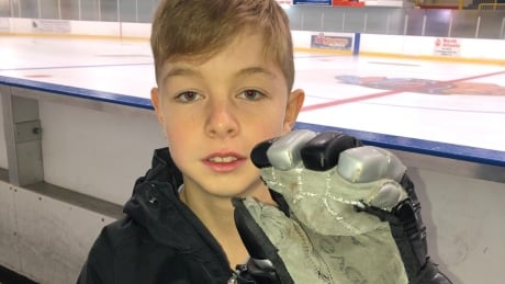 This 11-year-old can now play minor hockey thanks to an engineer's keen eye for design