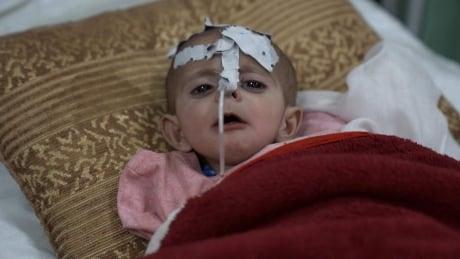 Number of rural Afghan children in Kabul hospital jumps